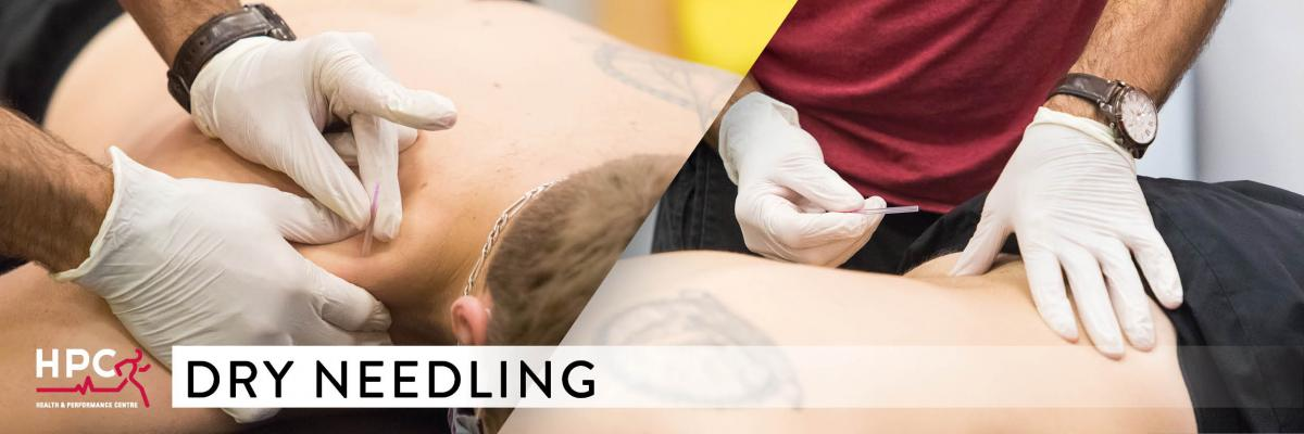 Dry Needling - HPC Physio